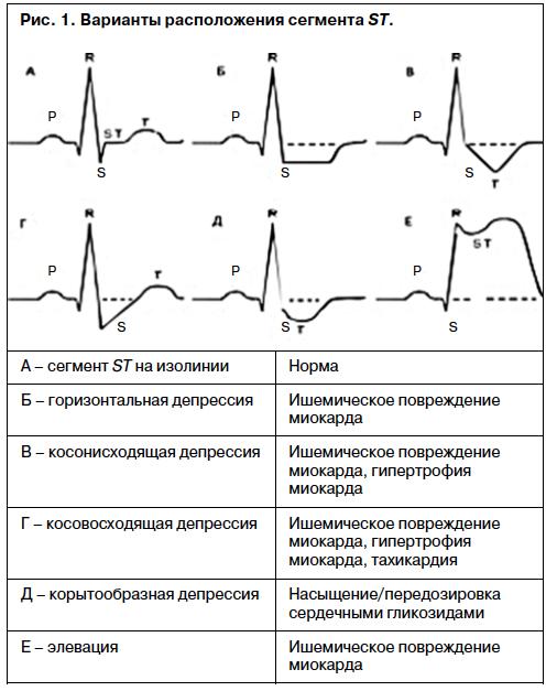 Основы Клинической Электрокардиографии Журавлева