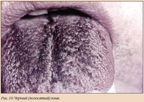 болезни языка волосы растут