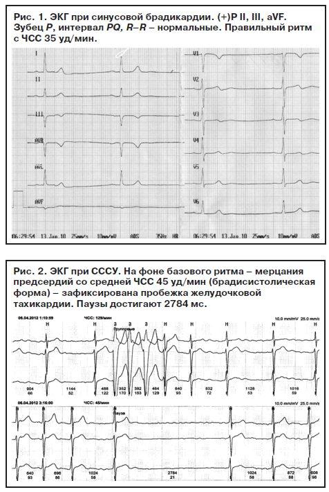 Диагностика синдрома слабости синусового узла - Consilium Medicum ...