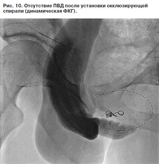 лигирование глубокой дорсальной вены при эректильной дисфункции
