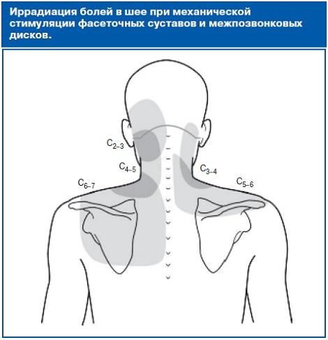 Осиплость при остеохондрозе