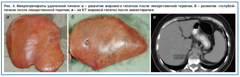 spermatozoid-posle-himioterapii