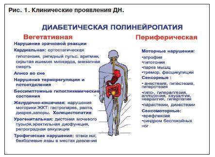 Лечение полинейропатии при сахарном диабете 1 типа