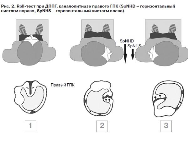 Лечебные маневры при доброкачественном позиционном головокружении