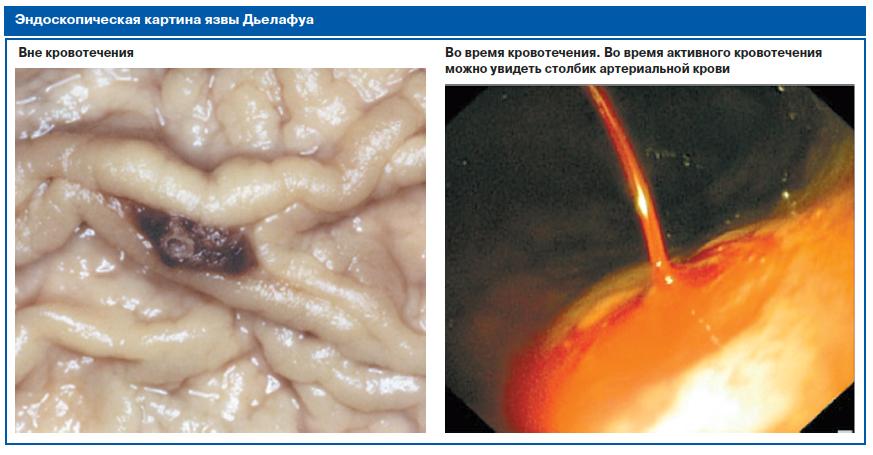 Маринованная капуста при диабете 2 типа