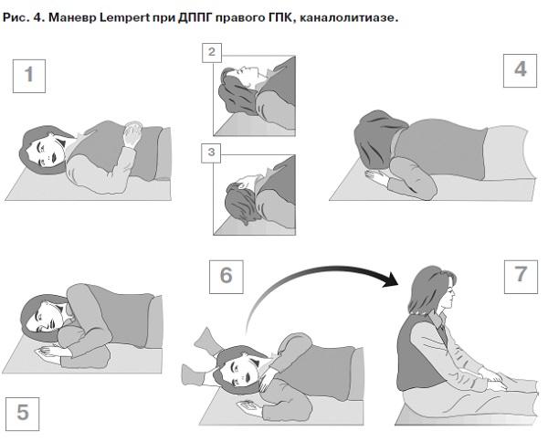 Гимнастика для лечения доброкачественного позиционного головокружения