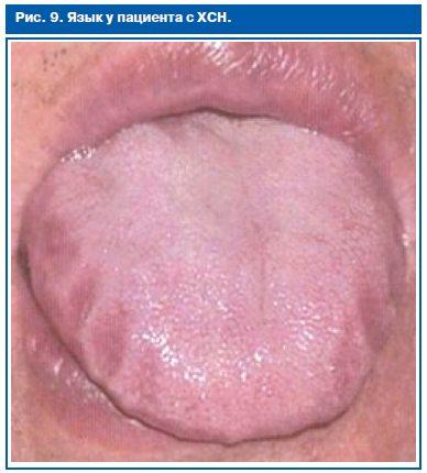 izmeneniya-v-polosti-rta-pri-arterialnoy-gipertenzii