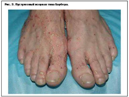 akrodermatit-ot-vilizivaniya-lechenie