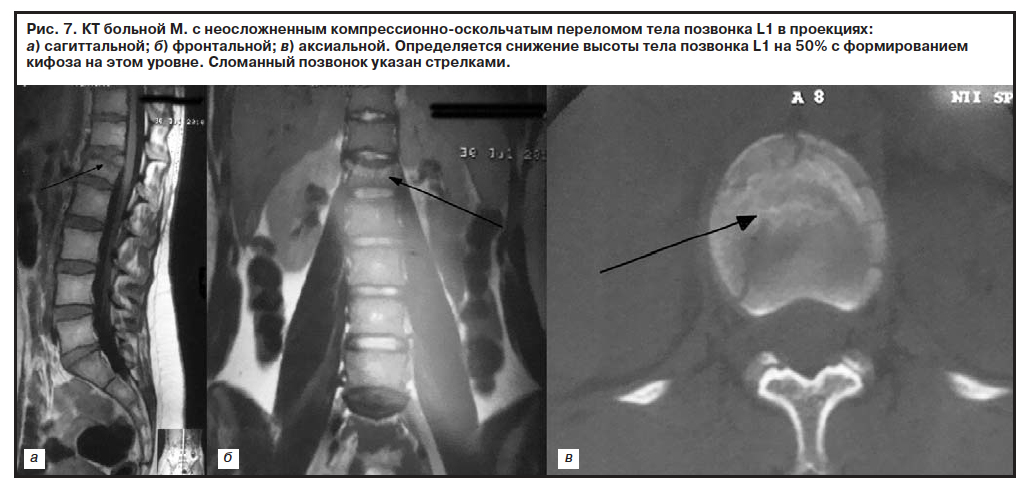 Хирургическое лечение оскольчатых переломов позвоночника