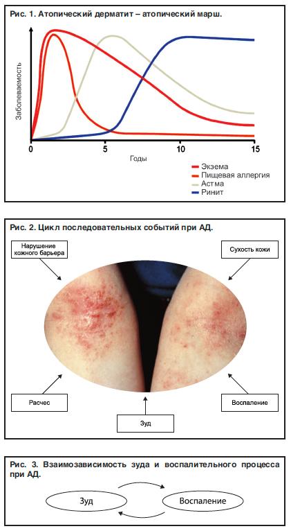 Манту при атопическом дерматите у ребенка