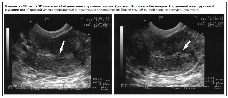 Тонкий эндометрий беременность