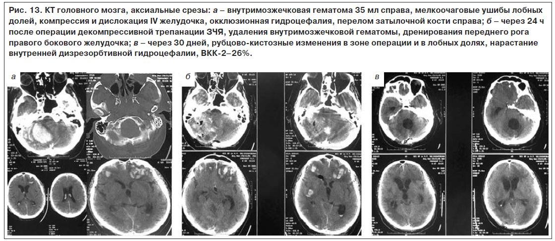 Как лечат гидроцефалию головного мозга у взрослых