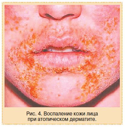 Болезнь экзема причины симптомы лечение и профилактика