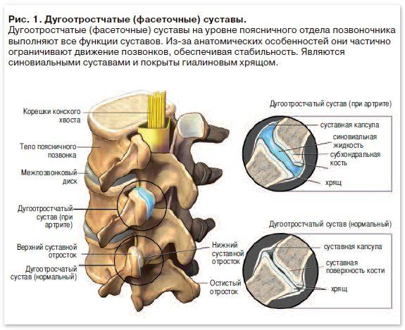 Артрит дугоотросчатых суставов подагра фото суставов стопы