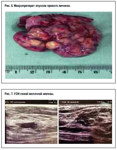 Рак молочной железы, ассоциированный с беременностью: клинический ...