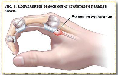 Периартикулярные поражения мягких тканей области кисти ...