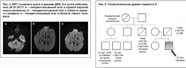 Нефроангиосклероз почек